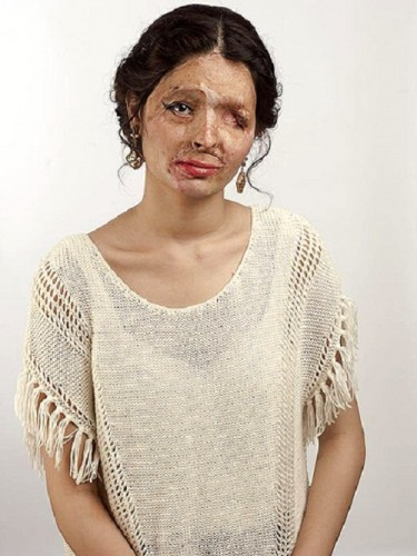 Acid-Attack-Survivor-Reshma-Qureshi1